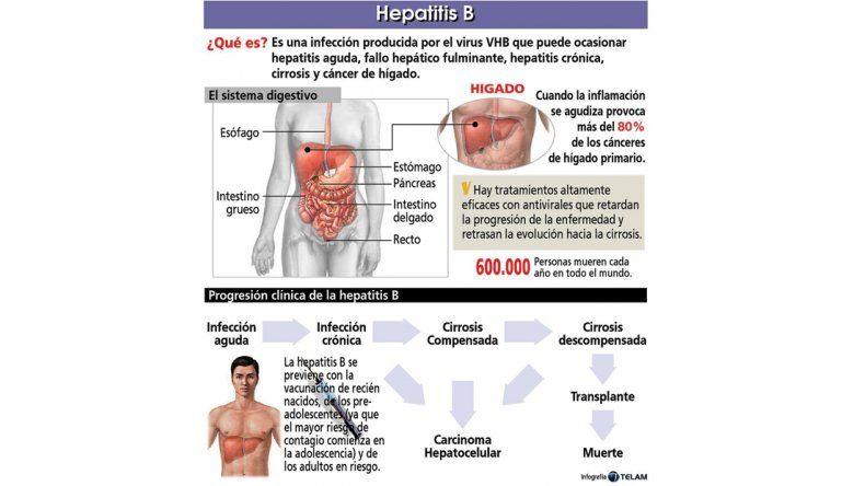 Dos de cada cien personas sufren de hepatitis pero ignoran estar enfermos