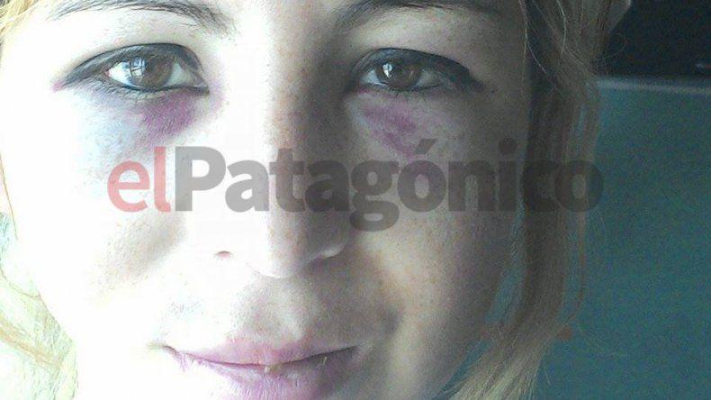 Habló Aldana y en un crudo relato recordó la noche en que fue apuñalada y golpeada