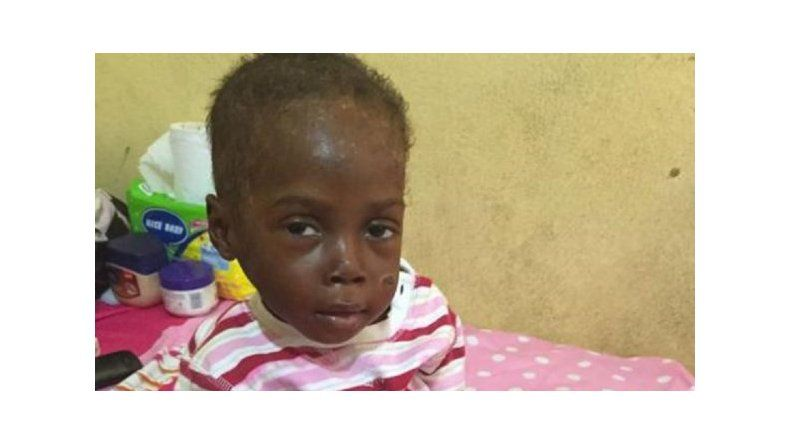Un niño nigeriano fue abandonado por ser brujo
