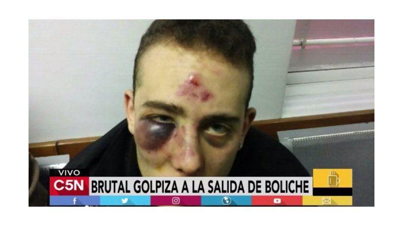 Brutal golpiza a la salida de un boliche: le pegaron en el piso y quedó así