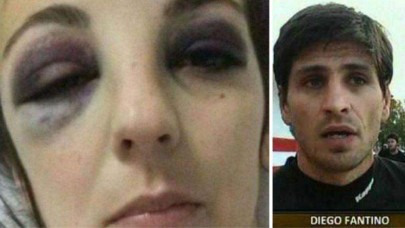 Futbolista fue detenido por agredir salvajemente a su ex