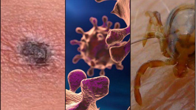 Atención: descubrieron una peligrosa bacteria asiática en Chile
