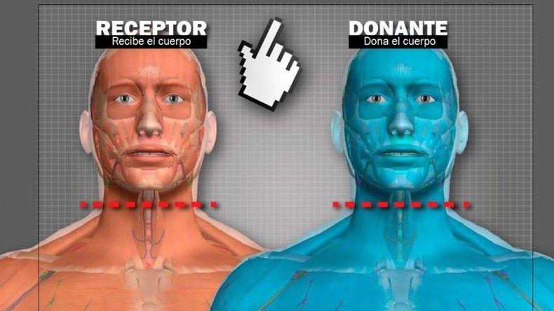El hombre que quiere someterse al primer trasplante de cabeza en la historia