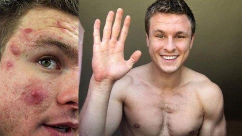 Un joven venció al acné con un método inédito