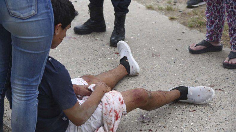 El menor de edad recibió una dura golpiza que le produjo fractura de tabique. Los atacantes también se llevaron su teléfono celular.