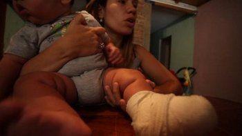 Un celular explotó y le quemó un pie a un bebé de 6 meses