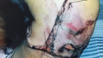 Cuestionan a Fiscalía por la calificación del caso de la mujer mordida por un Rottweiler
