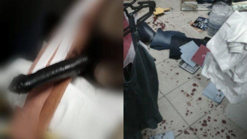 Intentó resistirse a un robo y le dejaron un cuchillo clavado en el cráneo