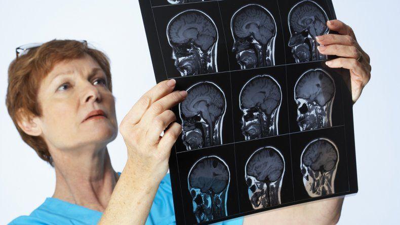 Tumores cerebrales: síntomas, orígenes y tratamientos