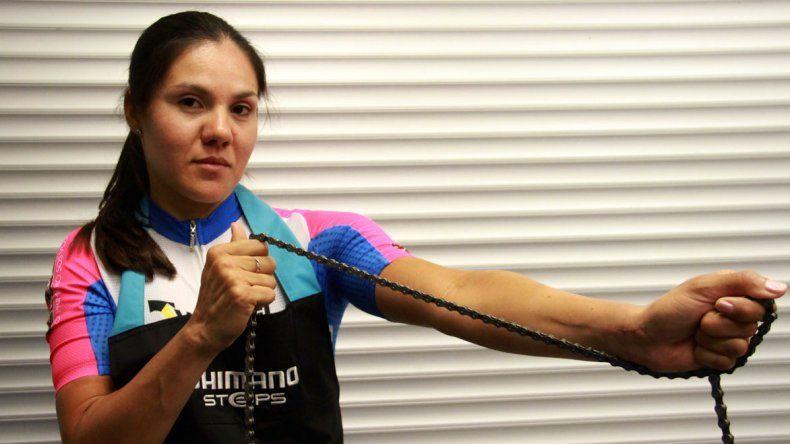 Mariela Delgado cuenta cómo la limita tener restricción de fuerza y movimiento en su brazo derecho. El resto ni lo nota.