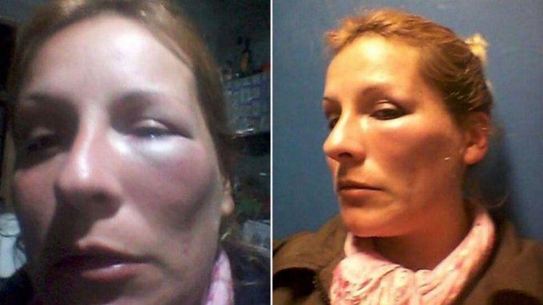 La golpeó y amenazó con quemarla junto a sus hijos