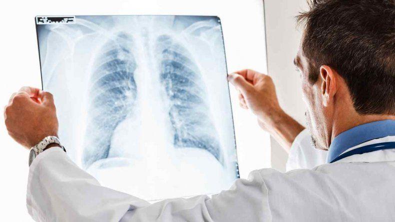 Cada hora muere una persona de cáncer de pulmón en Argentina
