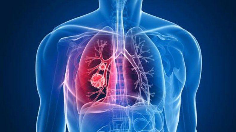 En Rada Tilly comienza el lunes una campaña para  detectar enfermedades respiratorias infecciosas