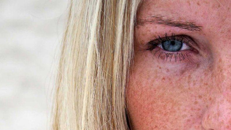Manchas en el iris pueden predecir patologías oculares