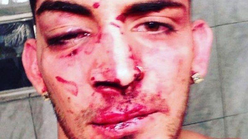 Un bailarín de Flavio Mendoza fue brutalmente herido en un boliche