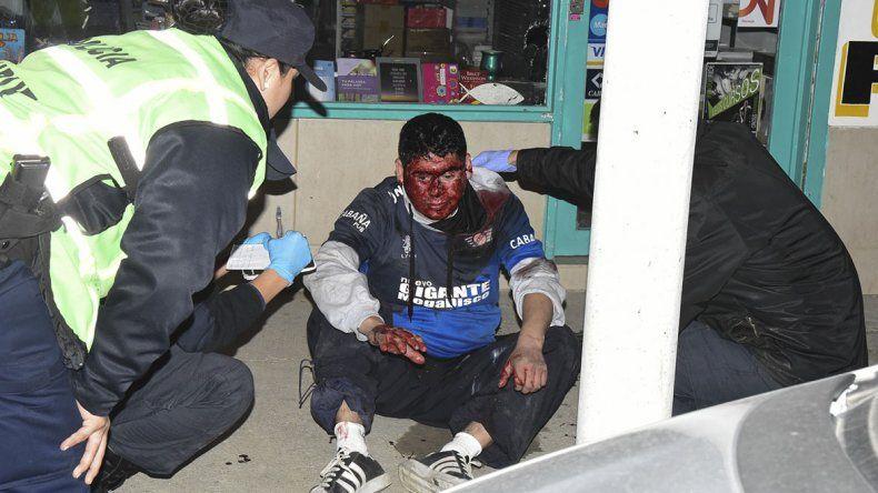 El simpatizante de Newbery perdió abundante sangre mientras esperó la ambulancia.