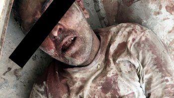 un ladron recibio una brutal golpiza y termino en el hospital