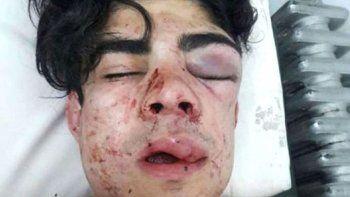 Desfiguraron a un joven por tener acento chileno