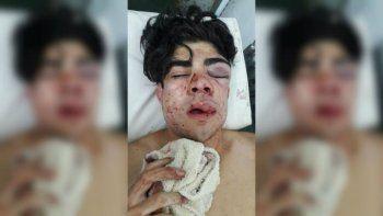la triste carta de la mama del chico atacado por su tonada chilena