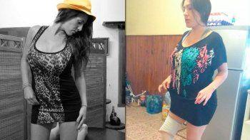 Una mujer perdió una pierna tras una liposucción en el abdomen