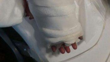 Un secarropa le arrancó el brazo a una beba y se lo reimplantaron