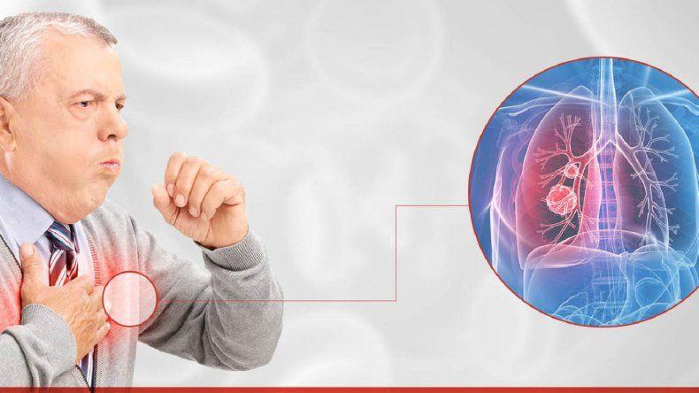 Fibrosis Pulmonar Idiopática (FPI): una enfermedad impredecible y de difícil diagnóstico