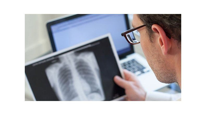 Aumentaron los casos de tuberculosis en la Argentina: ¿cómo prevenirla?