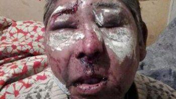 La víctima ya había sido asaltado y golpeado en dos ocasiones.