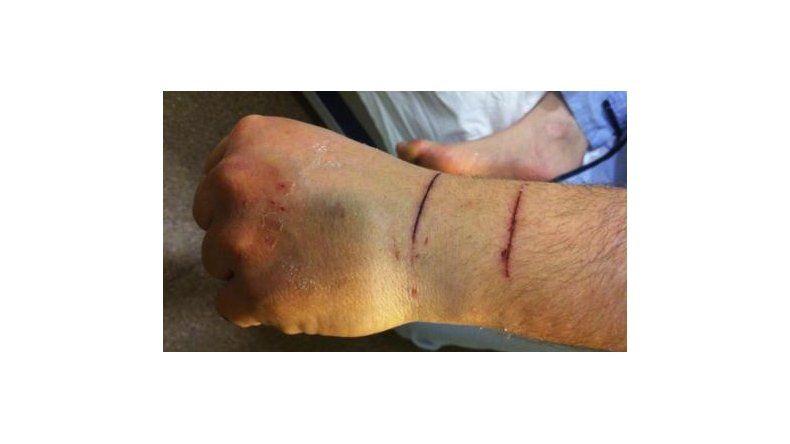 Denunció que su mujer lo apuñaló en una mano pero  se habría autolesionado