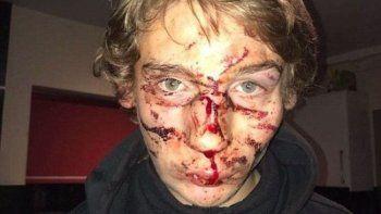 Cole Overson de 15 años.