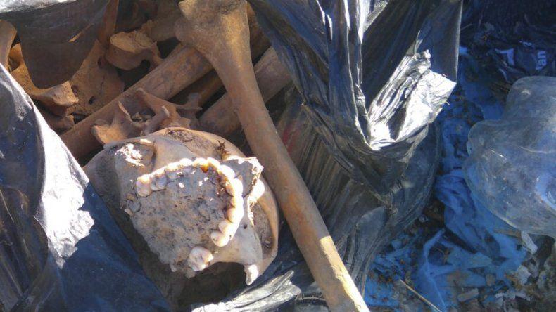Los huesos del contenedor  eran del María Auxiliadora