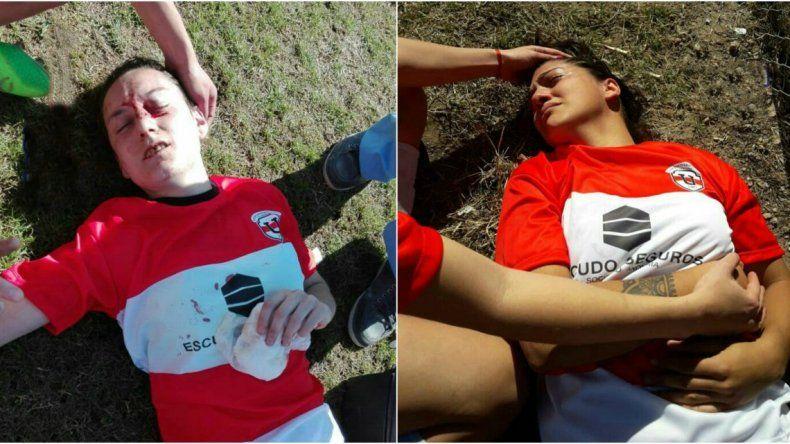 Batalla campal en el fútbol femenino