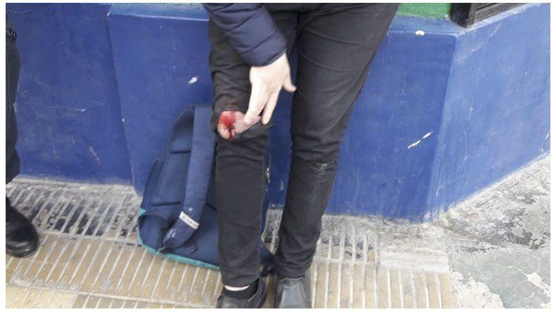 Apuñalaron a un joven en pleno Centro para robarle el celular