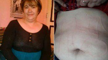 suspenden las ollas populares tras el secuestro y tortura a la docente