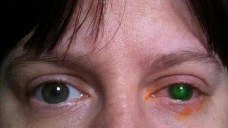 Casi pierde la vista por bañarse en una pileta con los lentes de contacto