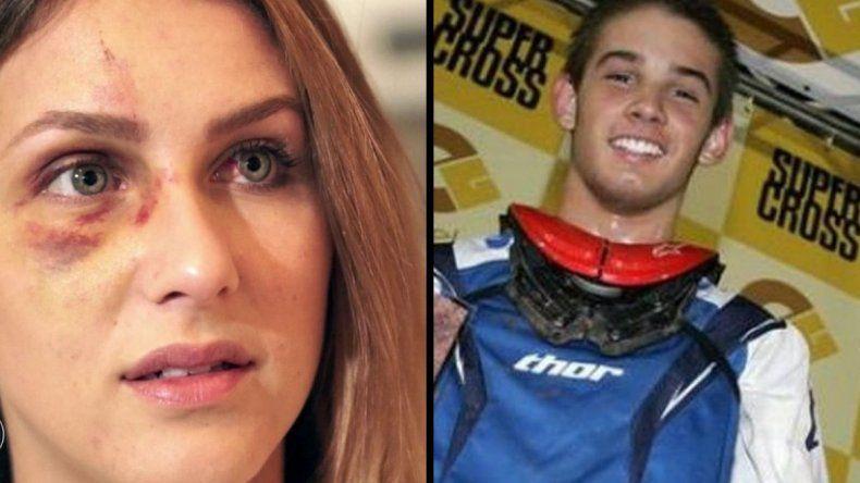 Campeón de Motocross golpeó brutalmente a su novia por una foto en Instagram