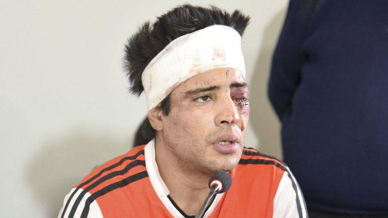 Mario Díaz entendía lo que hacía mientras golpeaba con un martillo en la cabeza a su pareja, Valeria Palma. La Cámara aseguró que no es inimputable.