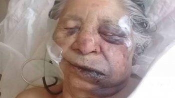 delincuentes desfiguraron a una abuela de 84 anos en una entradera