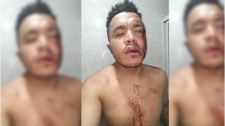 Atacaron brutalmente a un joven por ser homosexual