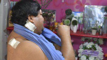 Fernando Choque, el empleado de la florería que se enfrentó a un desconocido, sufrió tres heridas de arma blanca en la espalda y otra en el cuello.
