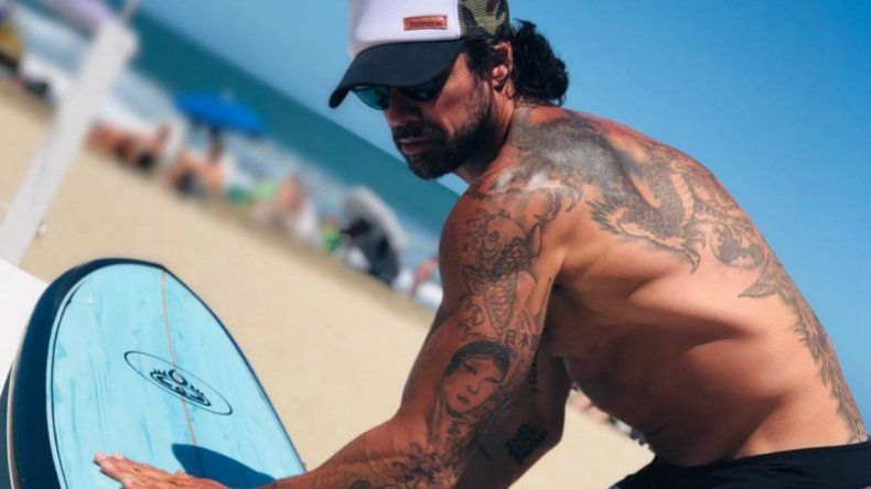 Las fotos de Luciano Castro tras un accidente con la tabla de surf