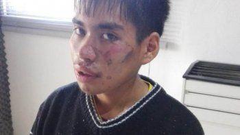 La Guardia Urbana lo halló inconsciente y solo recuerda que andaba en bicicleta
