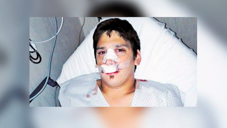 Seis patovicas atacaron a un joven cuando festejaba el cumpleaños de su hermana