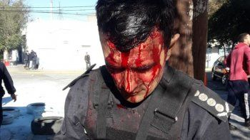incidentes en casa de gobierno: hirieron al jefe de la policia