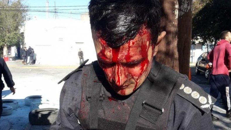 Arrojaron mampostería a Casa de Gobierno e hirieron al Jefe de la Policía