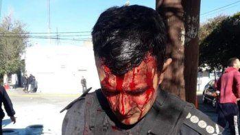 El propio jefe de Policía sufrió una herida tras recibir el impacto de una piedra arrojada por los manifestantes.