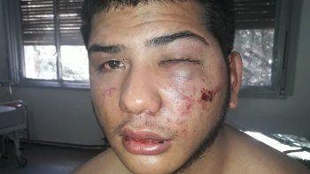 Cristhoper Bordón fue brutalmente golpeado por cinco patovicas en una sala detrás de la barra de Nexo Disco. Le sacaron el pantalón y le tiraron gas pimienta.