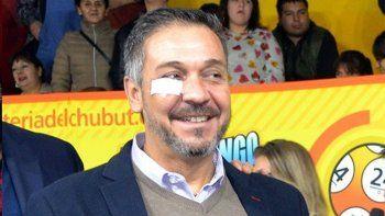 Barbato el domingo pasado en Corcovado, con un apósito en su ojo derecho.