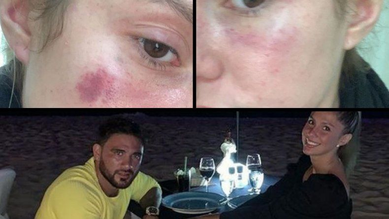 Grabó a su pareja amenazándola de muerte luego de golpearla y ahorcarla