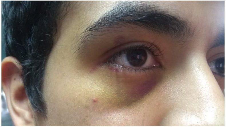 El árbitro Ignacio Savala fue agredido por el jugador Tomás Tula y radicó la denuncia en la comisaría de Rada Tilly.